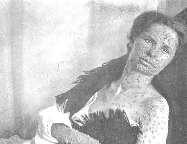 variole